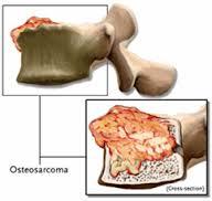 Ciri-ciri Kanker Tulang Belakang