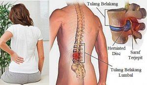 TBC Tulang