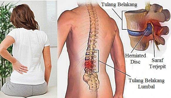 TBC Tulang: Gejala, Penyebab, dan Cara Mengobatinya