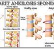 3 Teknik Pengobatan Ankilosis Paling Menyembuhkan