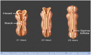 meningokel dan spina bifida