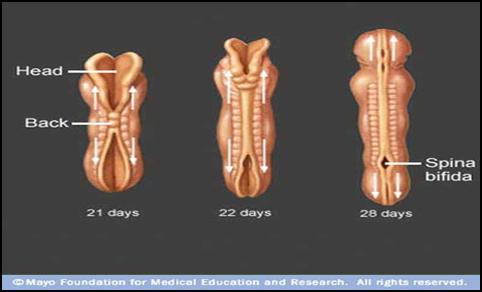 7 Perbedaan Meningokel dan Spina Bifida Jenis Lainnya Pada Bayi